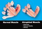 How Does TENS and EMS help muscle atrophy