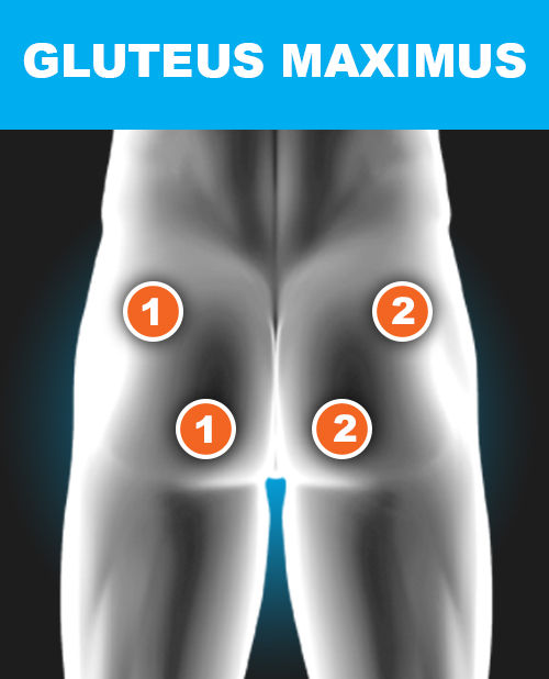 Glutes - Electronic Muscle Stimulation Pad Placement