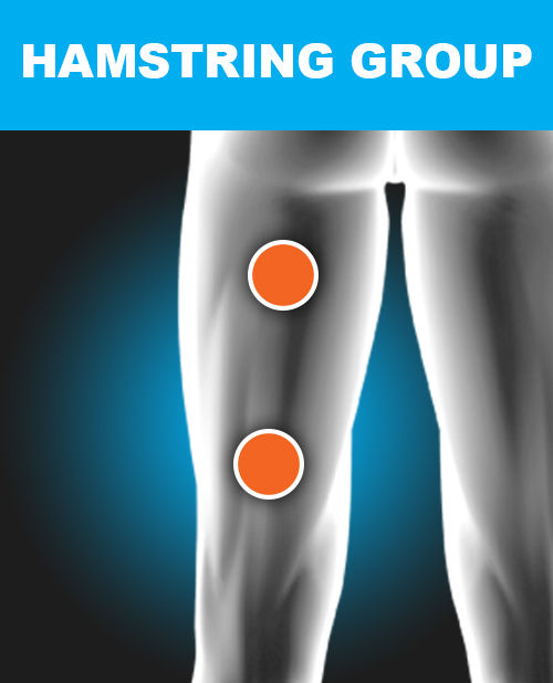 Hamstring - Electronic Muscle Stimulation Pad Placement