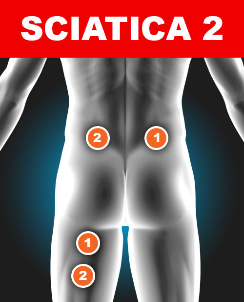 Pad Placement for Treating Sciatica 2 - TENS Pain Relief