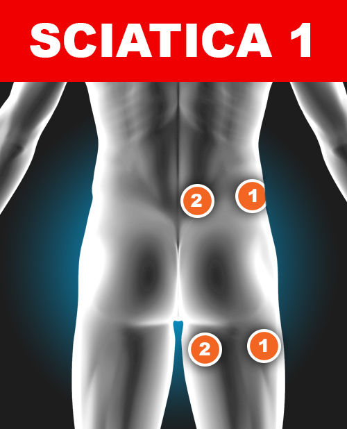 Pad Placement for Treating Sciatica - TENS Pain Relief